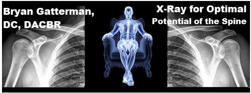 Gatterman: X-Ray 2020